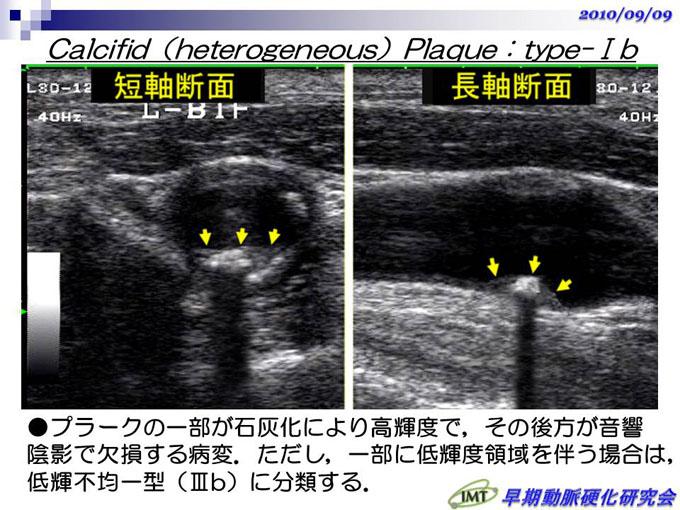 プラーク 頚動脈 消える エコー 血管プラーク・血栓を溶かす・作らせない!体験者が改善した方法とは